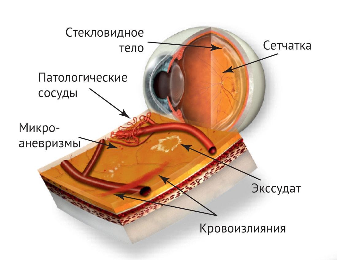 Диабетическая ретинопатия при сахарном диабете, симптомы, лечение