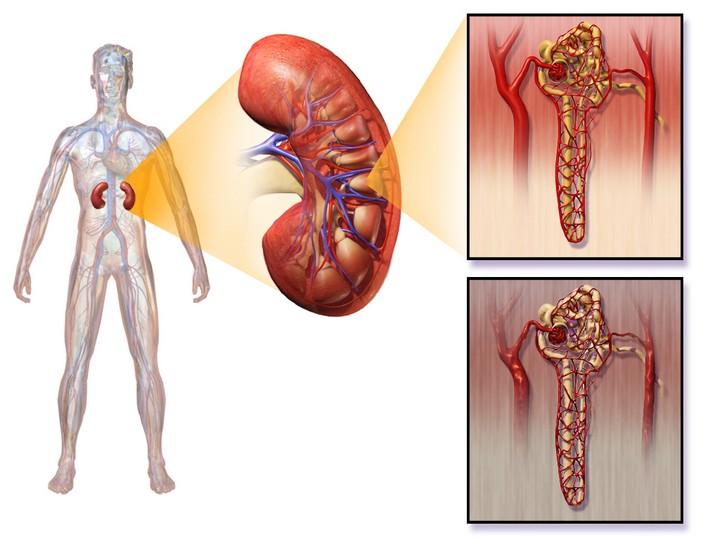 Диабетическая нефропатия: стадии, симптомы, лечение