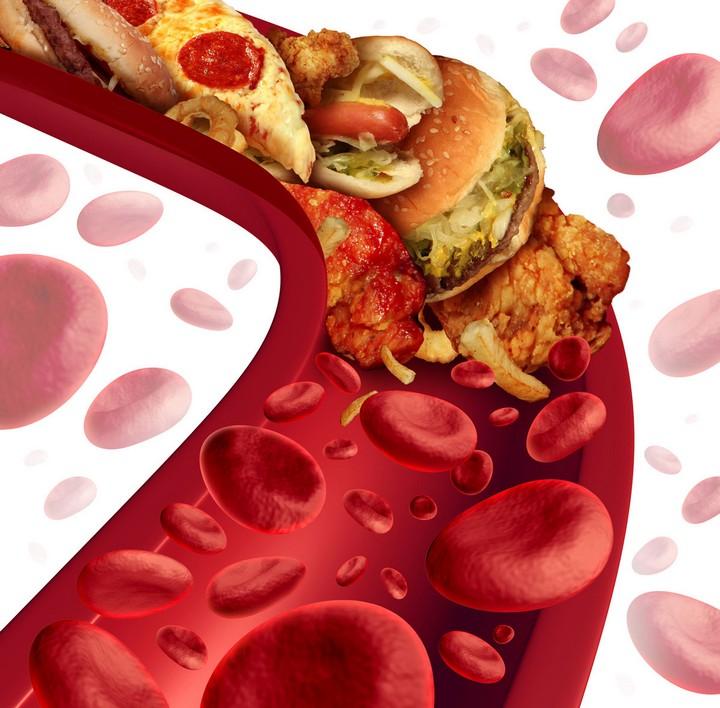 бляшки в стенках артерий