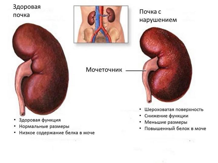 диабетическая-нефропатия