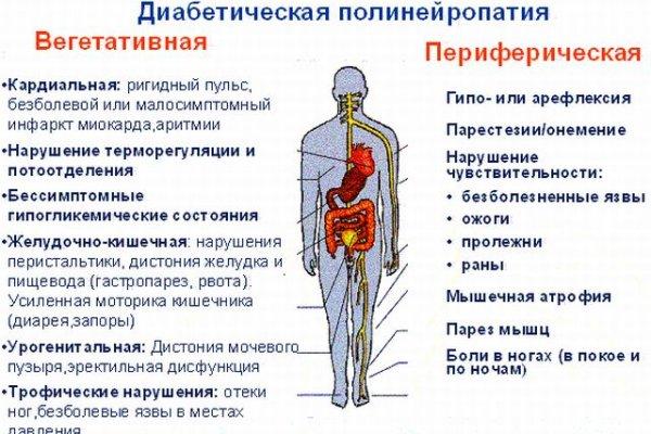 Нейропатия нижних конечностей лечение препараты при сахарном диабете