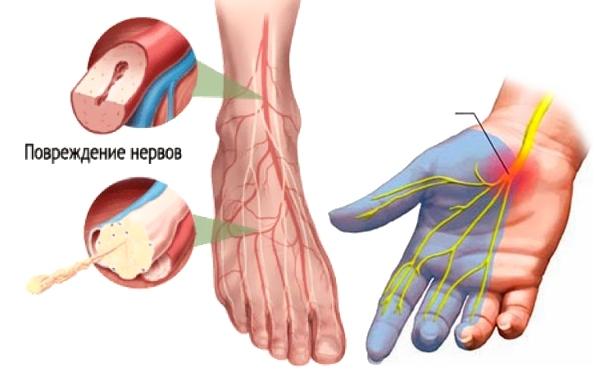 повреждения нервов конечностей