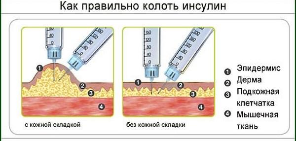 как колоть инсулин