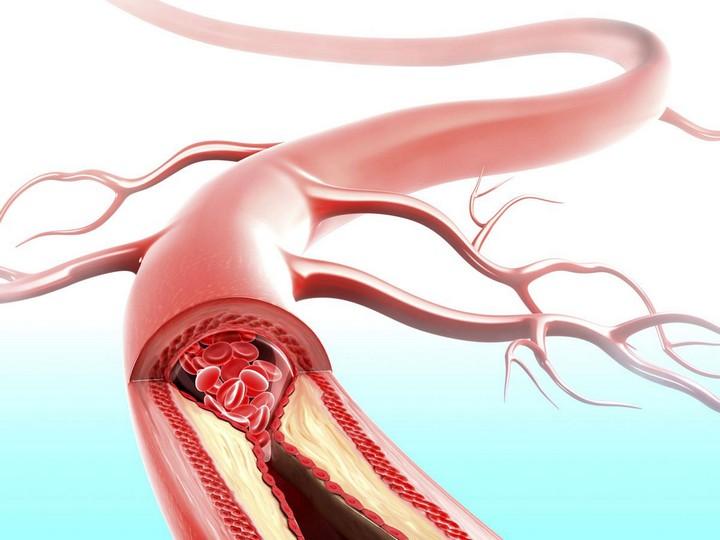 кровеной-сосуд