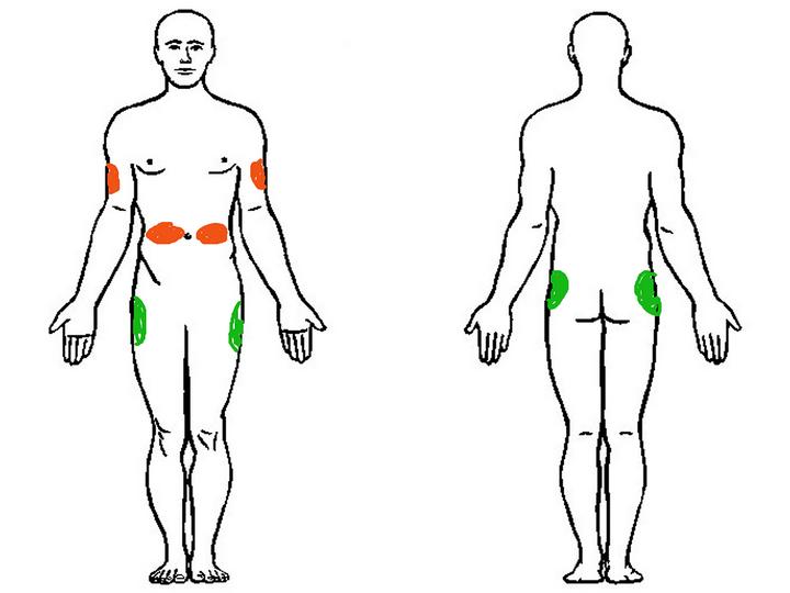 Как делать укол инсулиновым шприцом видео урок