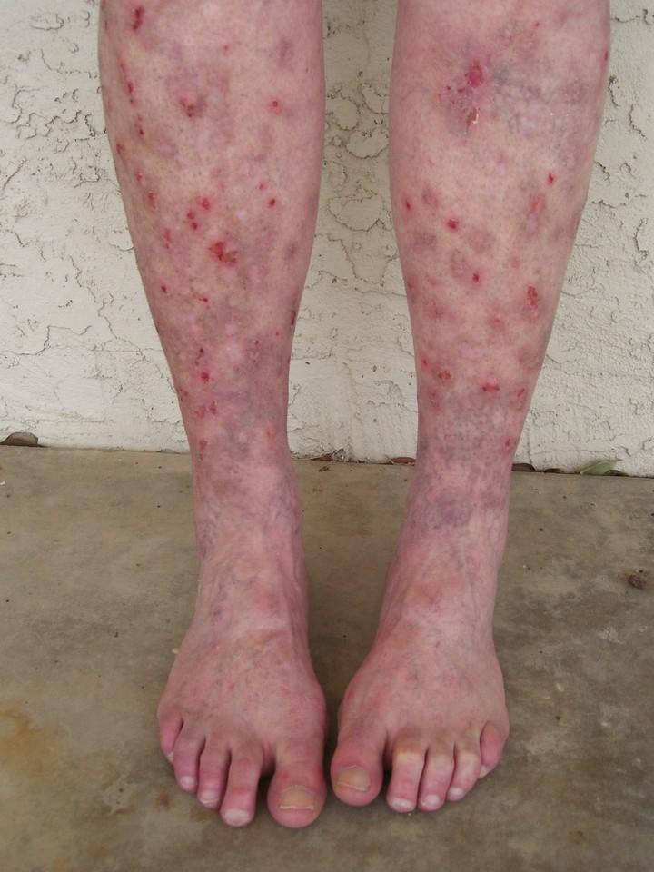ноги диабетика
