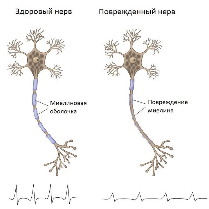 пораженный нерв