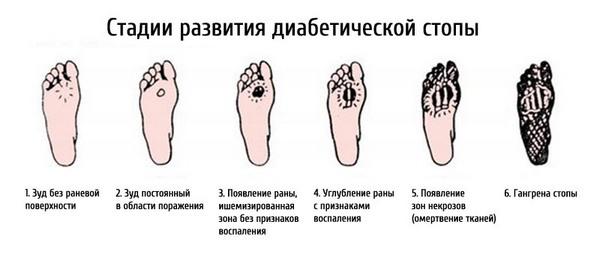 стадии диабетической стопы