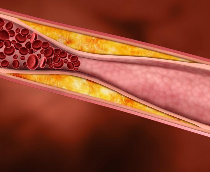 уровень холестерина в сосуде